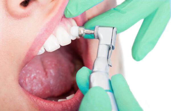 Zahnarztpraxis Giermann Gelsenkirchen PZR Zahnreinigung