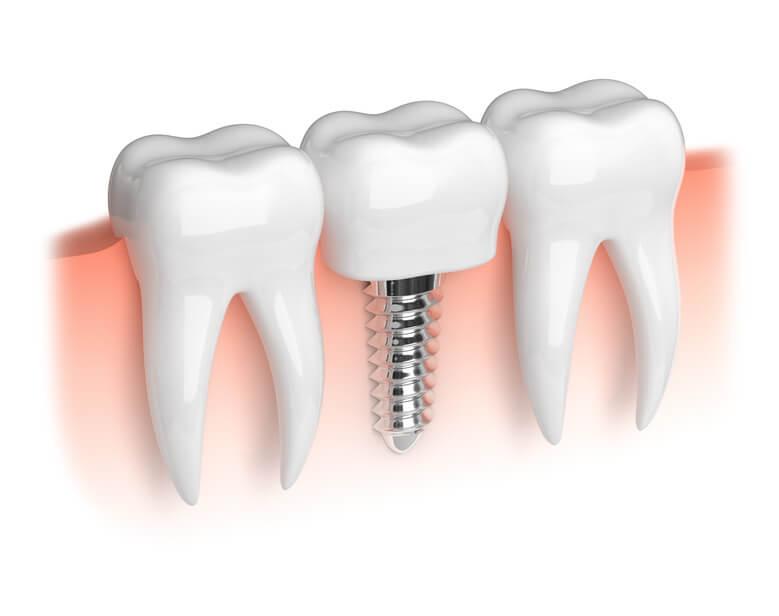 Zahnarztpraxis Giermann Gelsenkirchen Implantat