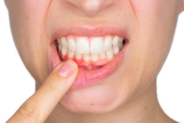 Zahnarztpraxis Giermann Gelsenkirchen Parodontose erkennen und bekämpfen